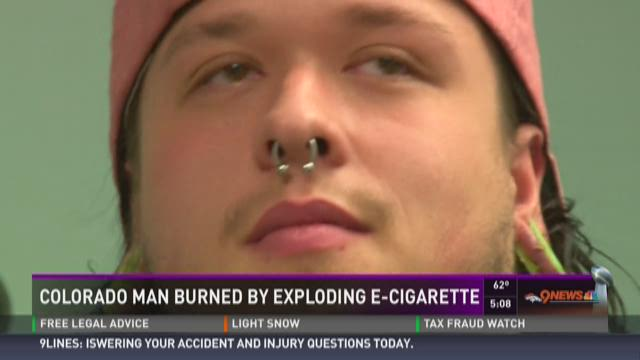 Colorado man burned by exploding e-cigarette