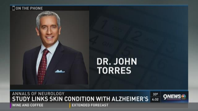Study links condition with Alzheimer's