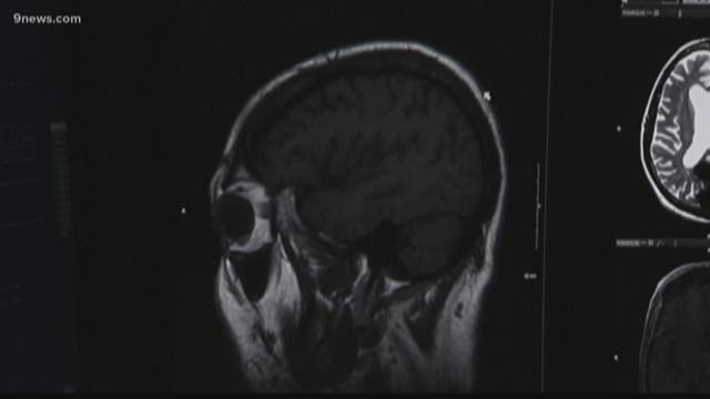 Concussions not necessary for CTE to develop